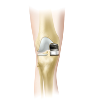 Subvastus Unicompartmental Knee Resurfacing